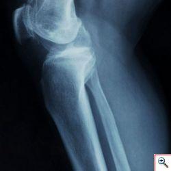 Fedios.org per saperne di pi� sull'osteoporosi
